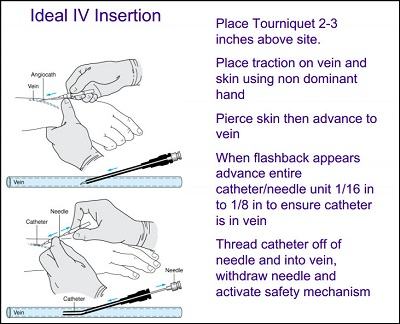 IV insertion