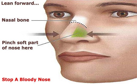 first aid for nosebleed