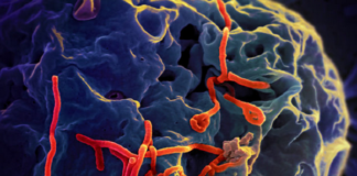 what nurses need to know about Ebola virus